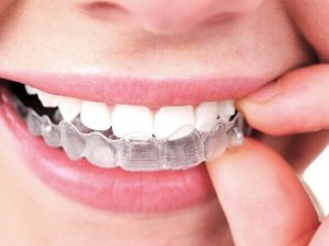 Invisalign® - Oceanfront Dental - Dr Nick Seddon